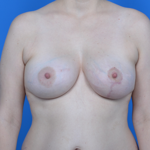 breast asymmetry corrected case 766