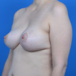 oblique view of patient after asymmetrical breast correction case 766