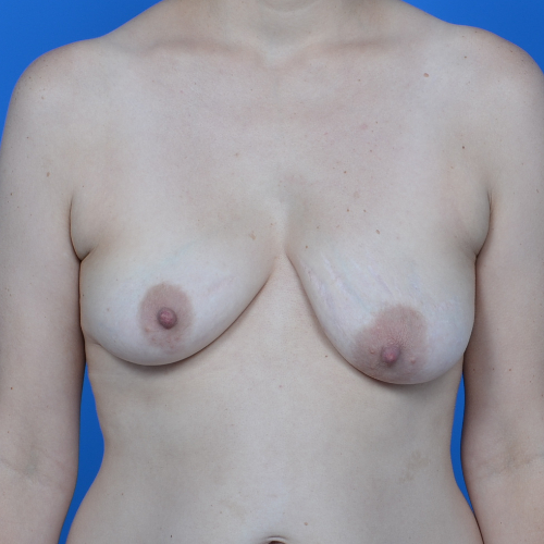 asymmetrical breasts of patient case 766