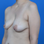 oblique view of patient's asymmetrical breasts case 766