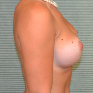 after breast augmentation right profile view case 844