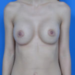 after breast augmentation front view case 837