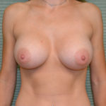 after breast surgery front view case 854