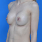 after breast augmentation left oblique view case 837