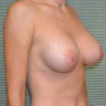 after breast surgery oblique view case 854