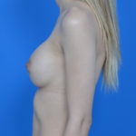 after breast augmentation left profile view case 837