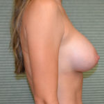 profile view of patient after breast augmentation case 854