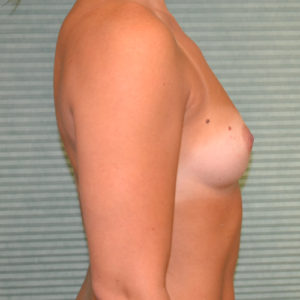 before breast surgery left profile view case 844