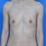 before breast augmentation front view case 837