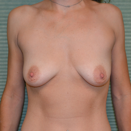 before breast surgery front view case 854