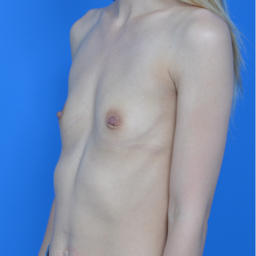 before breast augmentation left oblique view case 837