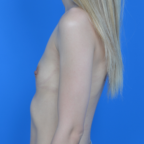 before breast augmentation left profile view case 837