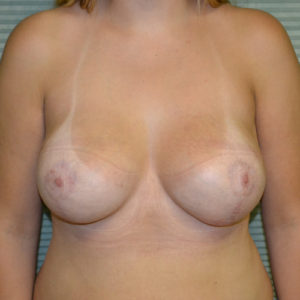 after breast lift right front view case 806