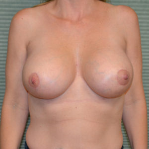 after breast lift front view case 771