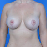after breast lift front view case 778