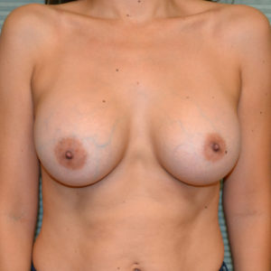 after breast lift front view case 785