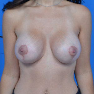 after breast lift front view case 792