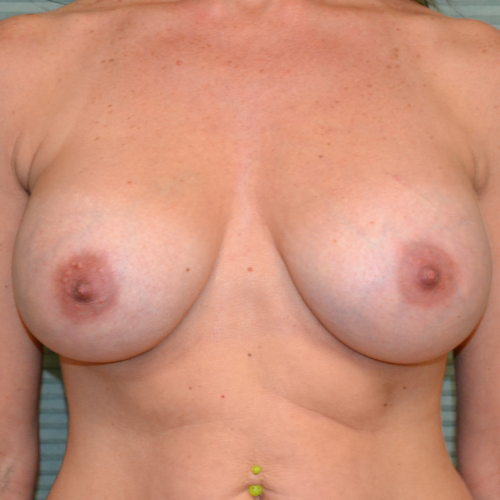 after breast lift front view case 799