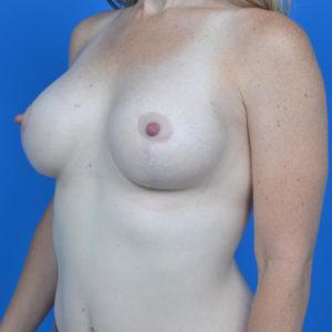 after breast lift left oblique view case 813