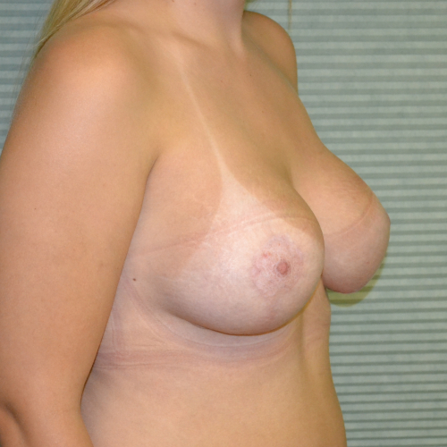 after breast lift right oblique view case 806