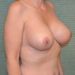 after breast lift right oblique view case 771