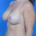 after breast lift left oblique view case 778