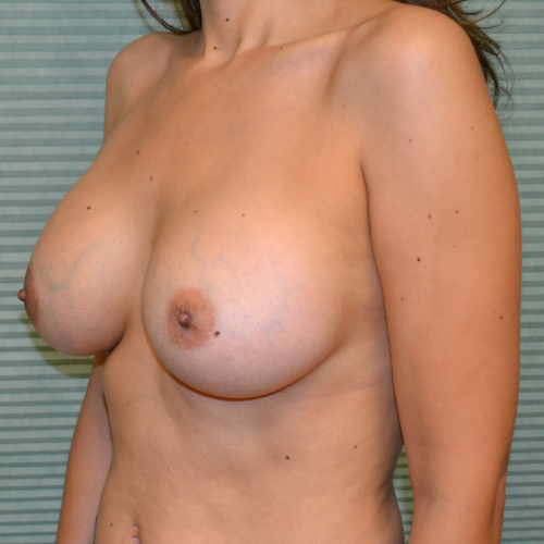 after breast lift left oblique view case 785