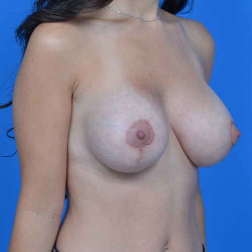 after breast lift right oblique view case 792