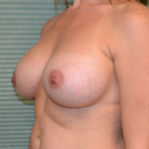 after breast lift left oblique view case 799