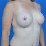 after breast lift right oblique view case 813