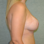after breast lift right profile view case 806