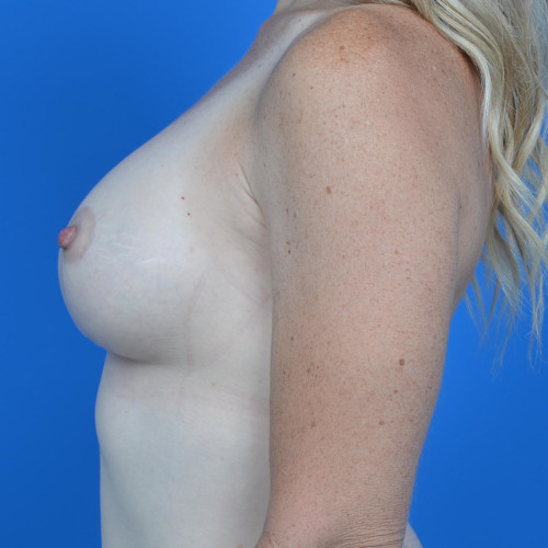 after breast lift left profile view case 813