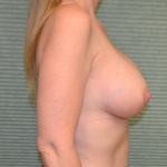 after breast lift right side view case 771