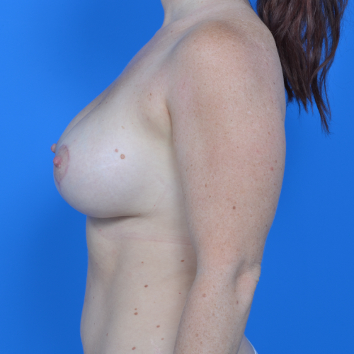 after breast lift side view case 778