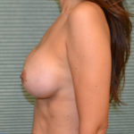 after breast lift left side view case 785