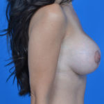 after breast lift right side view case 792