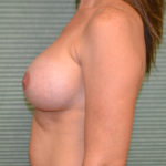after breast lift left profile view case 799