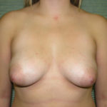 before breast lift front view case 806