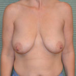 before breast lift front view case 771