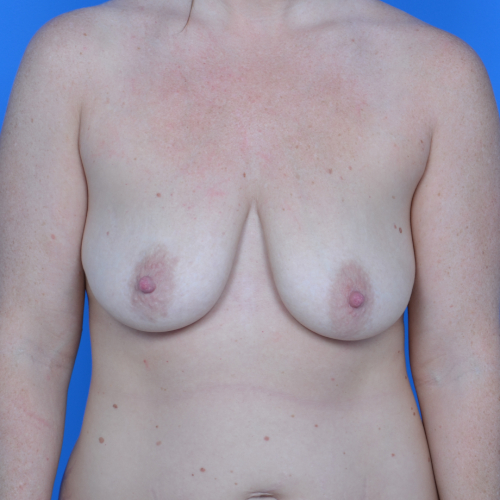 before breast lift front view case 778