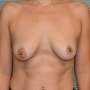 before breast lift front view case 785