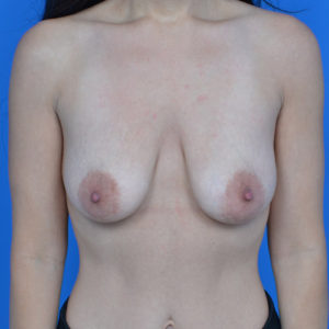 before breast lift front view case 792