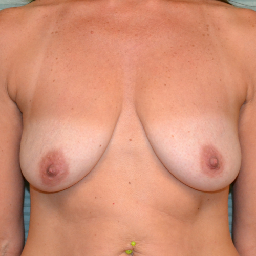 before breast lift front view case 799