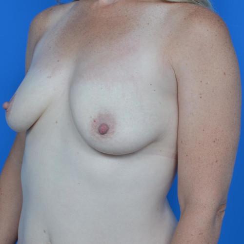 before breast lift left oblique view case 813