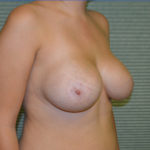 before breast lift right oblique view case 806