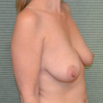 before breast lift right oblique view case 771