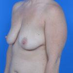 before breast lift left oblique view case 778