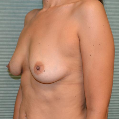 before breast lift left oblique view case 785