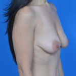 before breast lift right oblique view case 792