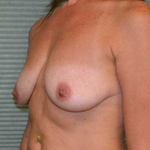 before breast lift oblique view case 799